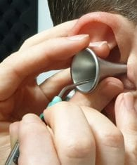 Microsuction removes earwax easily